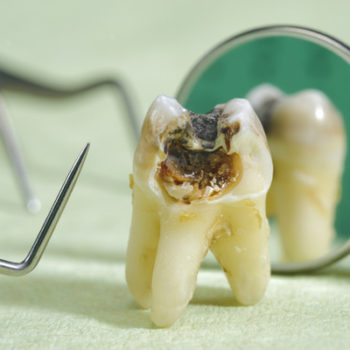 a tooth that's been rotted from decay
