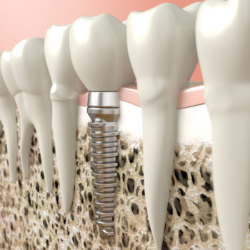 3D model of a single-tooth dental implant
