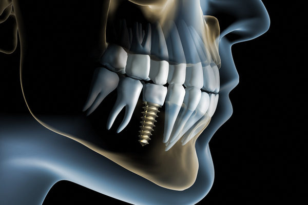 a view of how a complete dental implant restoration looks after fusing with your jaw